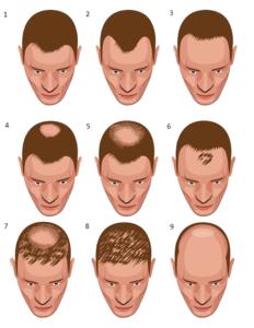 Haarverpflanzung preise